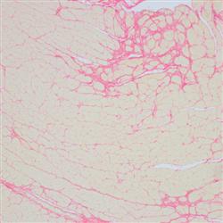 JRD608天狼星紅染色病理檢測